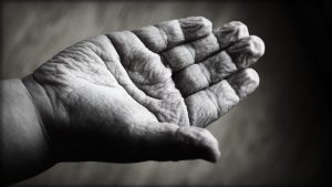 Mains abîmées